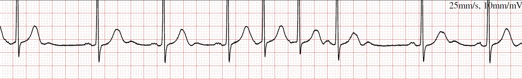 Ectopic Heart Rhythm