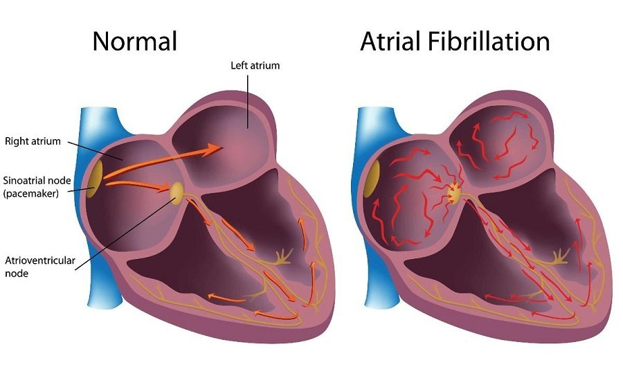 Does Atrial Fibrillation cause Heart Failure