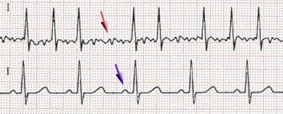 Atrial Fibrillation (AF) – Advice and Tips on Management