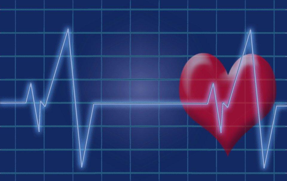 heart sinus rhythm