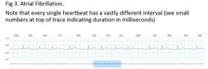 Heartbeat interval